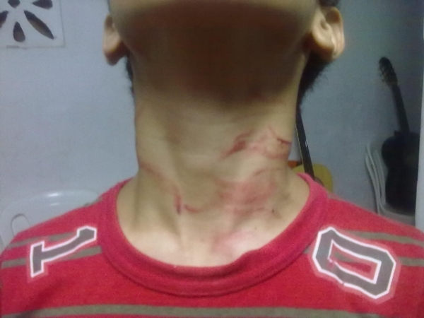garoto agredido por colega de aula 2