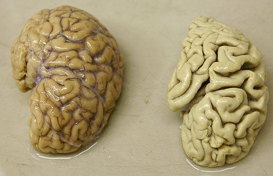 imagem cérebro saudável e com alz.